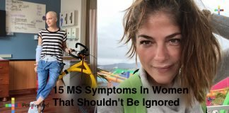 15-MS-Symptoms-In-Women-That-Shouldnt-Be-Ignored