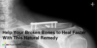 Help Your Broken Bones to Heal Faster With This Natural Remedy