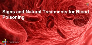 Signs and Natural Treatments for Blood Poisoning