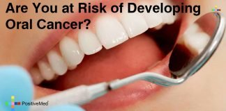 Are You at Risk of Developing Oral Cancer?