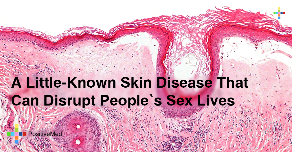 A Little-Known Skin Disease That Can Disrupt Your Sex Life