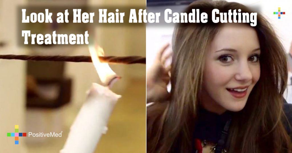 Look at Her Hair After Candle Cutting Treatment