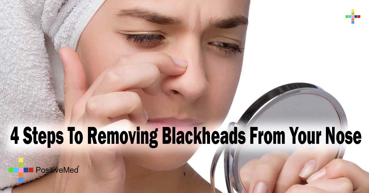 4 Steps To Removing Blackheads From Your Nose