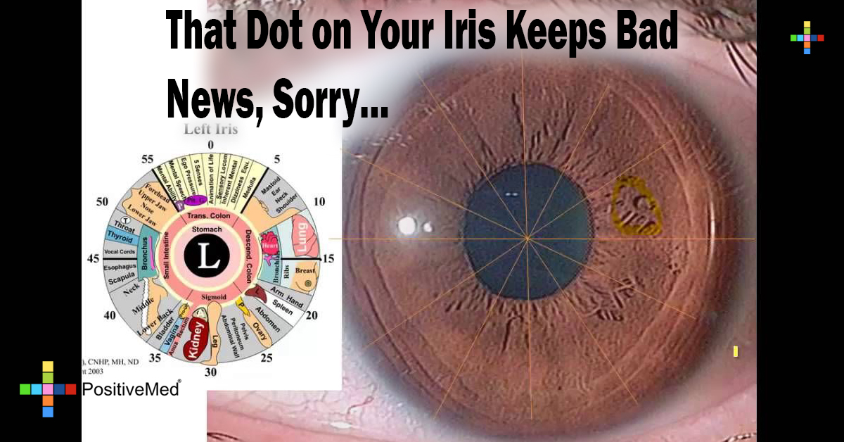 That Dot on Your Iris Keeps Bad News, Sorry...