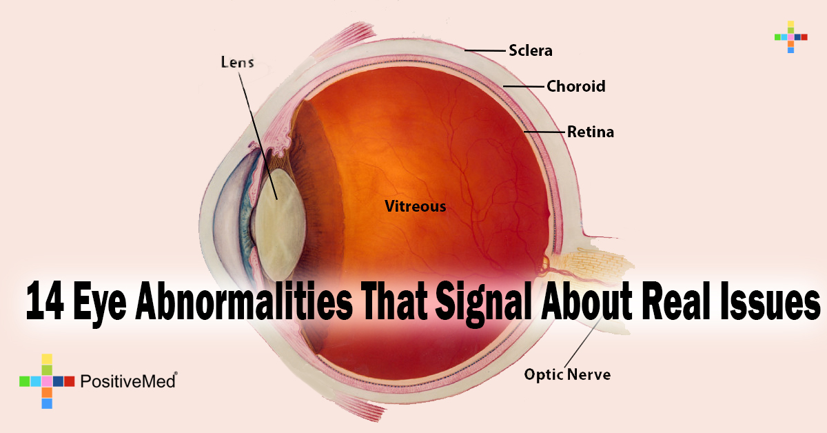 14 Eye Abnormalities That Signal About Real Issues