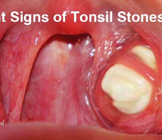 6 Silent Signs of Tonsil Stones You Need to Be Aware of
